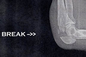 x-ray image of Arlene's broken elbow