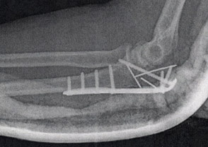 x-ray image of Arlene's elbow with plate and screws